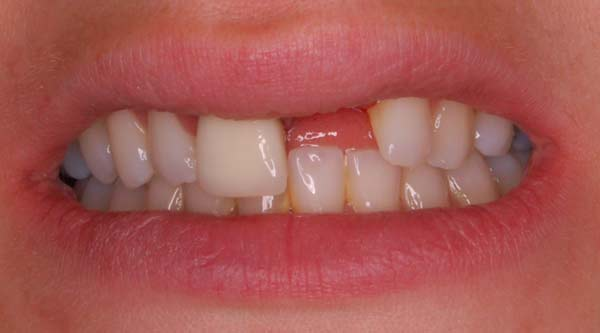 teeth before implant