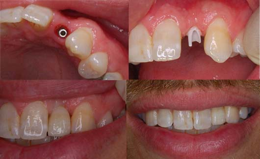 4 pics of a tooth implant