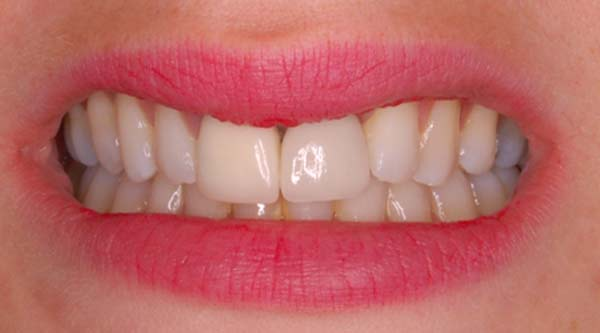 teeth after implant